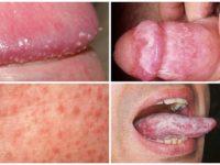 Признаки и симптомы молочницы у мужчин, фото