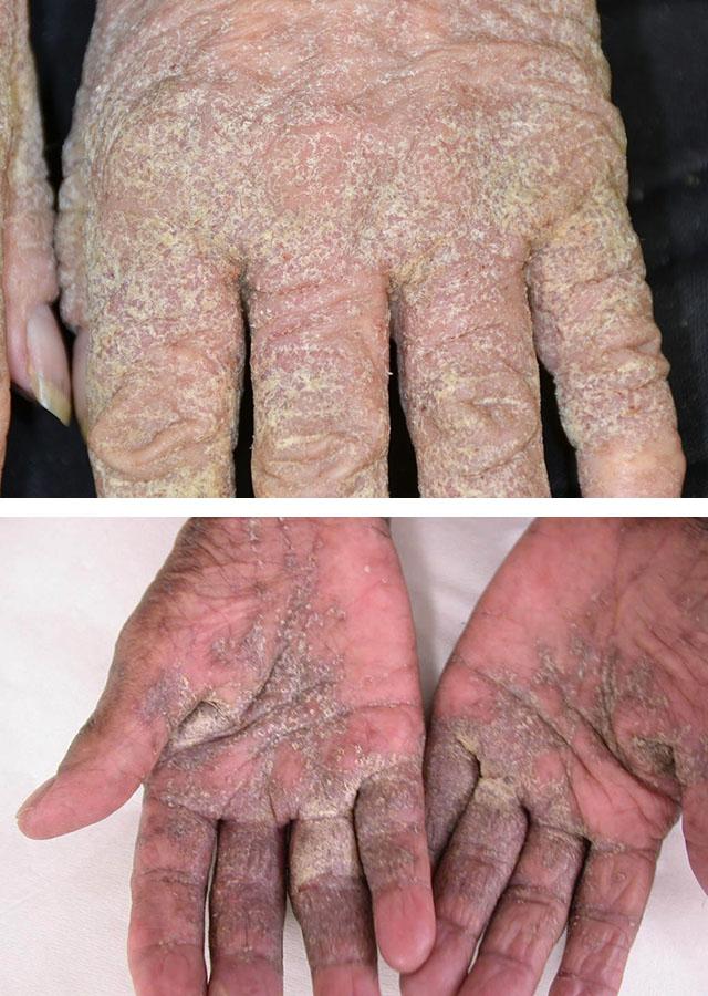 Проявления норвежской чесотки на коже рук