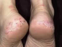 Псориаз на ступнях