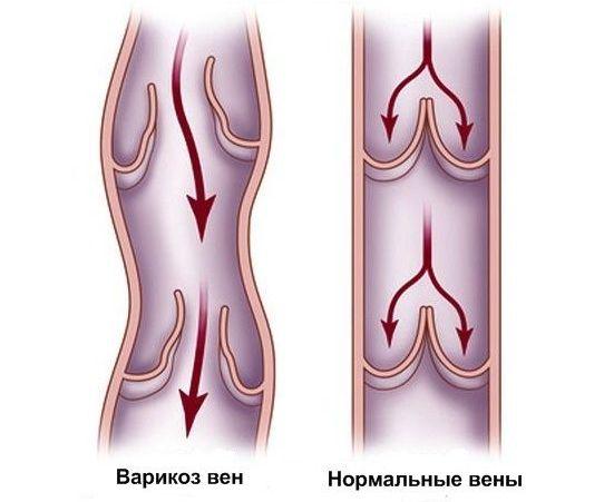 дисфункция сосудистых клапанов
