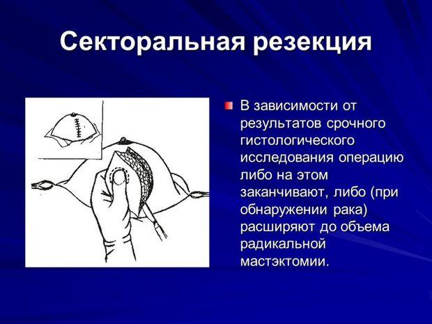 Секторальная резекция молочной железы