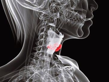 щитовидная железа 1024*768