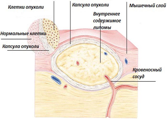 Схема строения липомы
