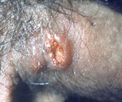 Сифилис у мужчин фото