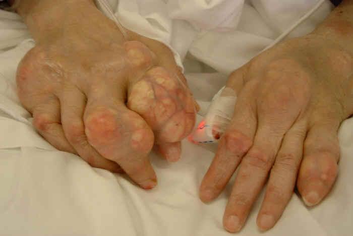 Подагра: симптомы и признаки с фото, лечение у женщин и мужчин ...