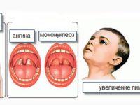Симптомы мононуклеоза и ангины у детей