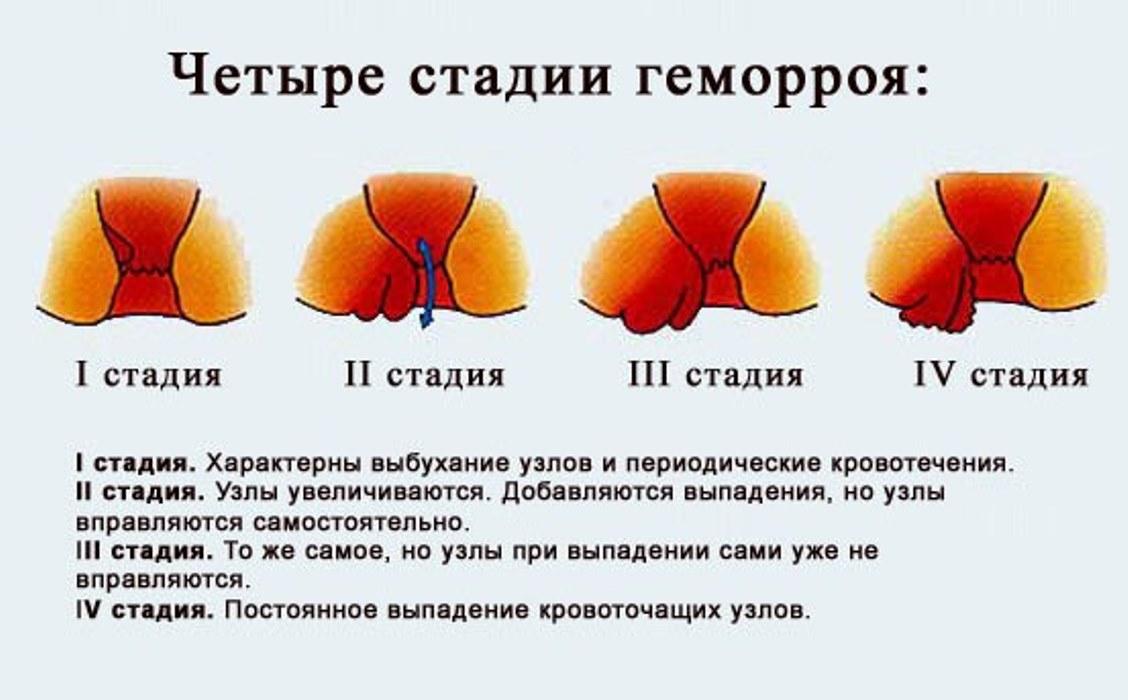 симптомы фото геморроя