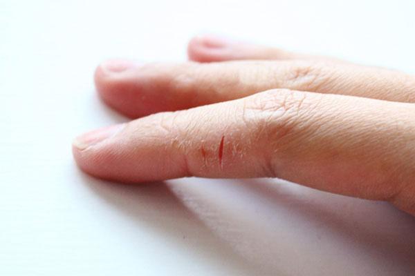 Облезает кожа на пальцах рук у ребенка как лечить