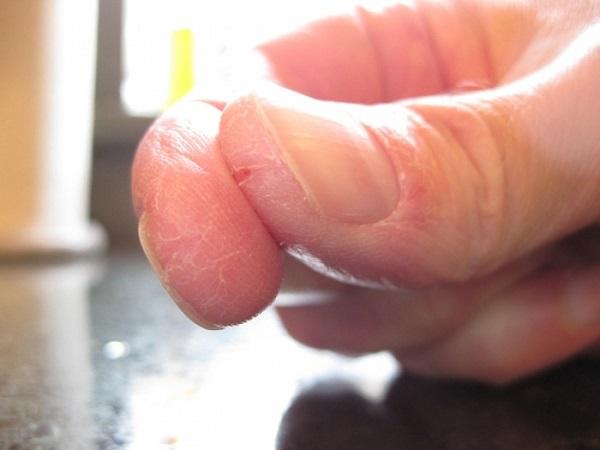 Зимой трескаются пальцы на руках как лечить