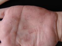 Вторичный сифилис, фото рук