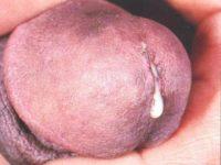Выделения у мужчин при хламидиозе