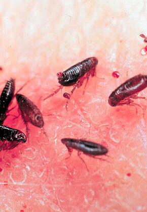 какие паразиты могут быть в волосах человека