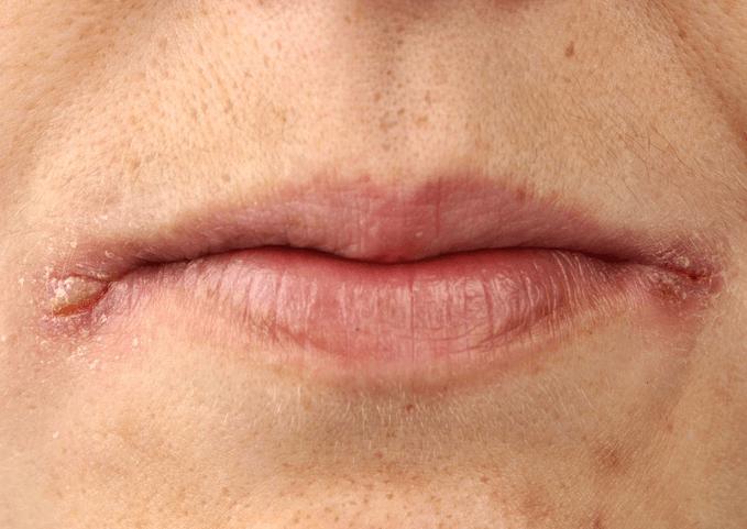 Заеды, трещинки в уголках губ