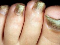 Запущенная стаддия грибка ногтей на ногах