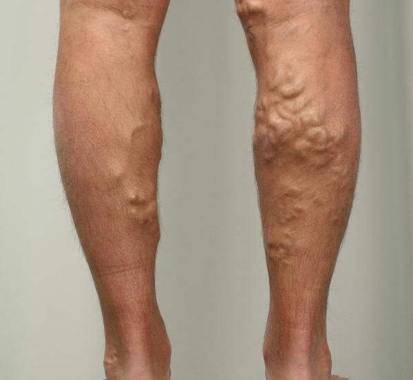 Варикоз и болячки на ногах