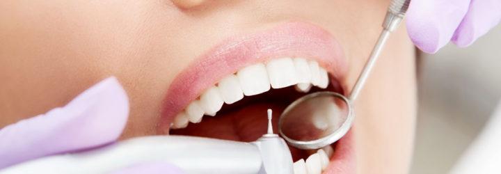 Зубы стоматолог