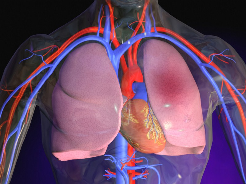 Отёк лёгких: причины, симптомы, лечение