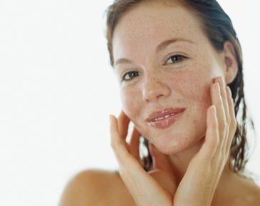 Пигментные пятна на лице: причины, лечение, удаление пигментных пятен