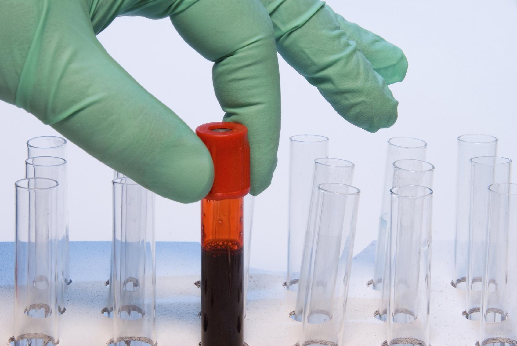 Креатинин в крови: норма, повышенный и пониженный уровень