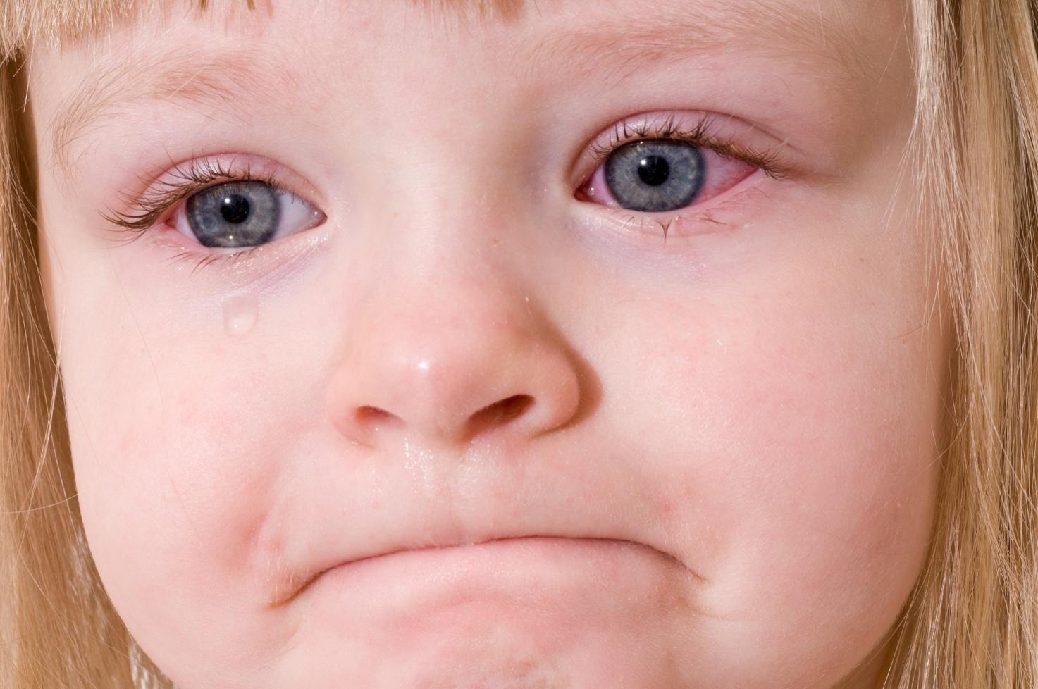 Аллергический конъюнктивит у детей и его особенности