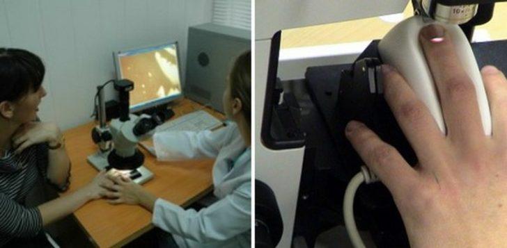 Капилляроскопия ногтевого ложа