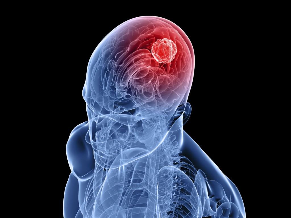 Скрытая причина хронической головной боли: церебральный арахноидит
