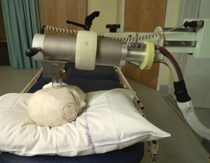 Аппарат лучевой терапии