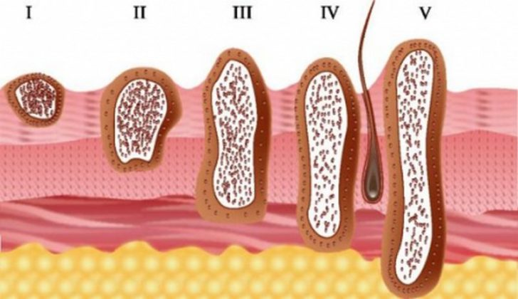 Схематическое изображение прогрессирования рака кожи