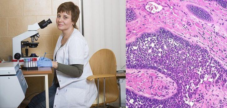 Врач, микроскоп и гистологический образец