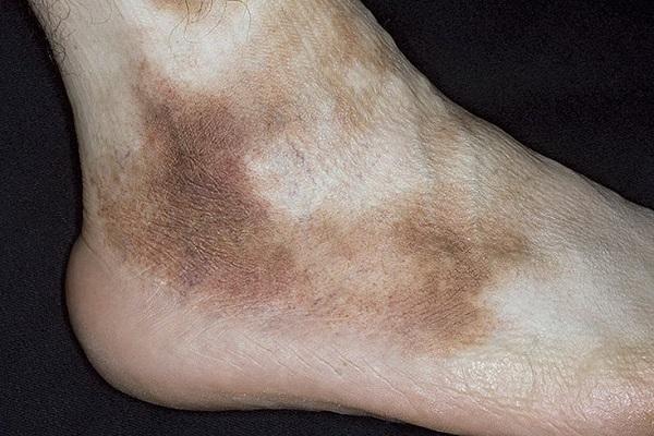 Пигментные пятна при болезни Шамберга