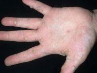 Бородавки на пальцах и ладонях