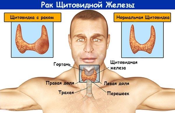 Человек с щитовидной железой