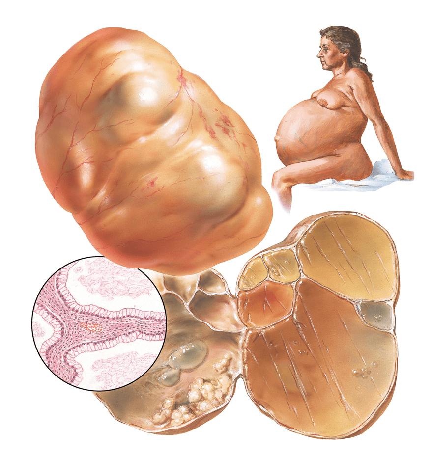 серозная цистаденома яичника причины