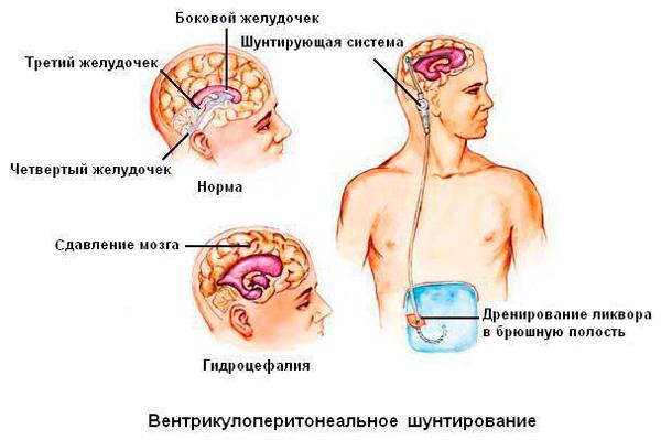 Дренирование желудочков мозга