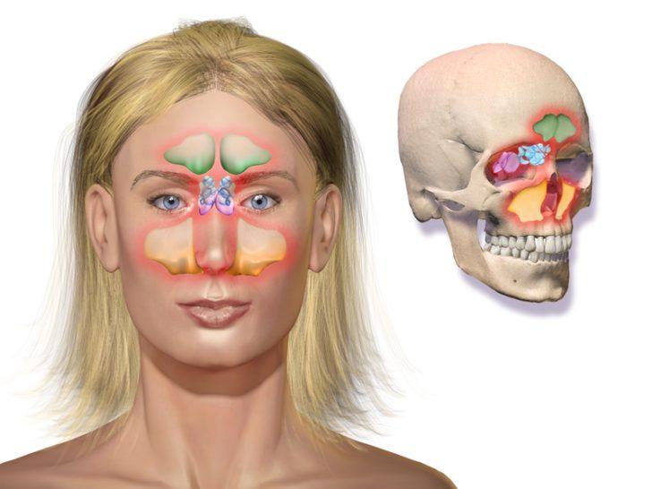 Виды синусита по локализации воспаления