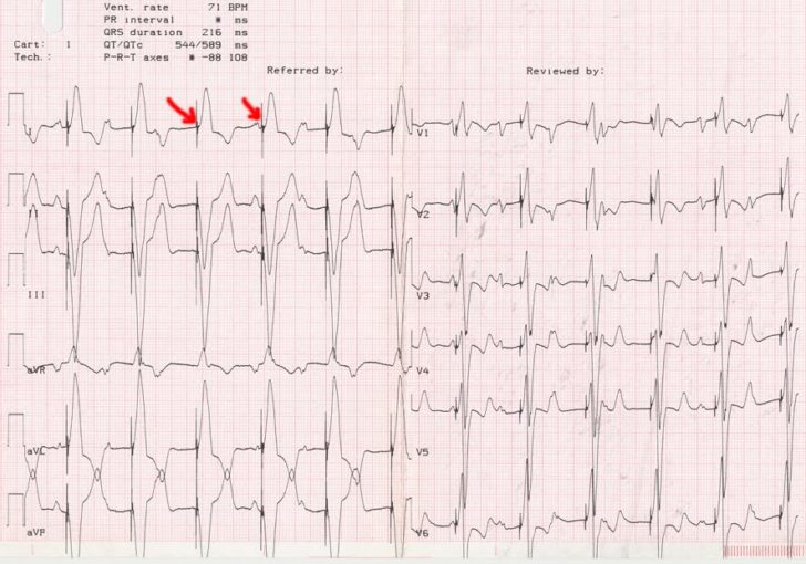 ЭКГ с ритмом кардиостимулятора