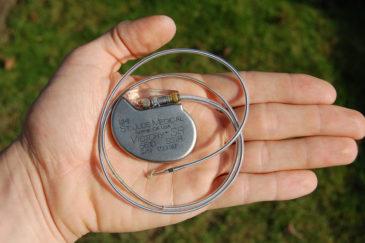 электрокардиостимулятор