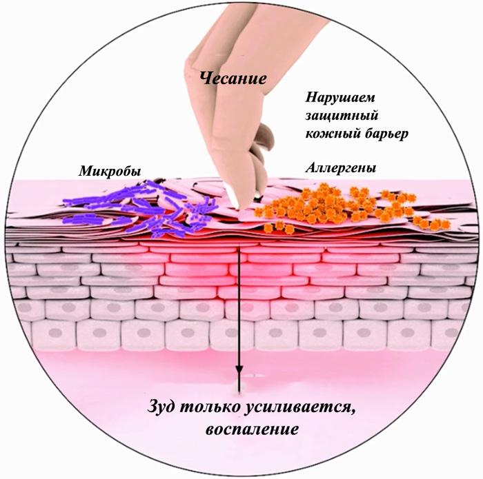 Факторы развития атопического дерматита
