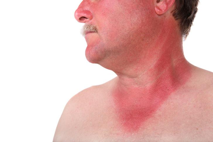 Геморрагическая сыпь при ГЛПС