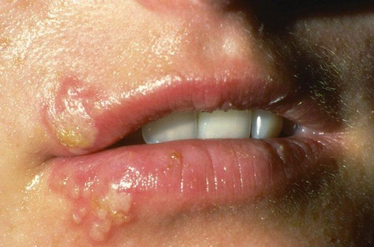 Распространенные кожные заболевания: фото и описание с названиями ...