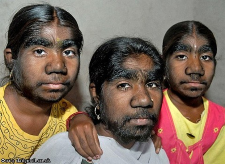 Самые волосатые девушки фото 740 фотография