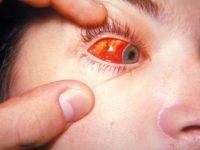 Глаза больного инфекционным мононуклеозом ребенка