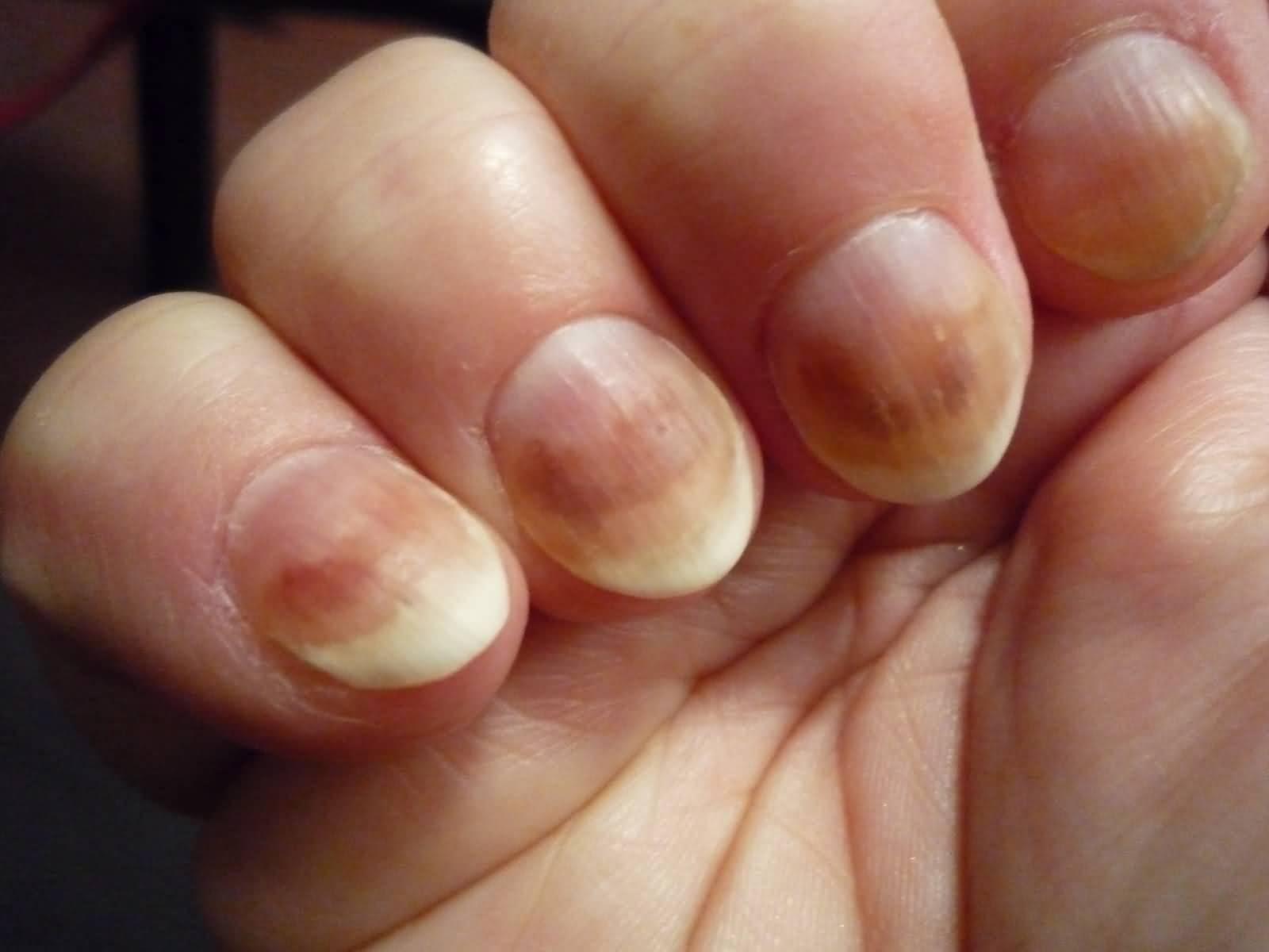 Чем вылечить грибок под ногтями