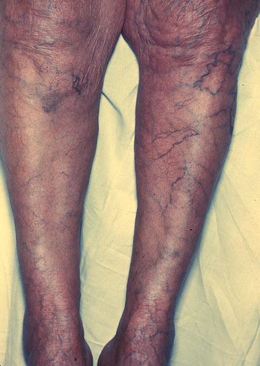 При наступании на левую ногу болит левый бок