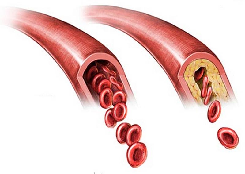 препараты от холестерина растительного происхождения