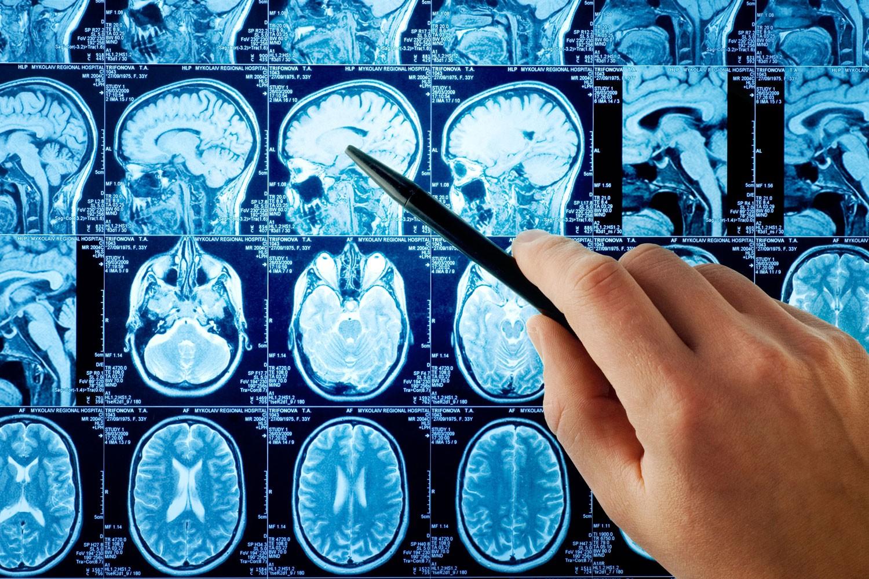 Беспощадный инсульт: эффективная профилактика заболевание