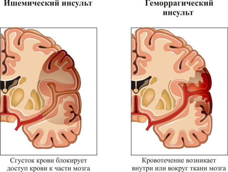 Причины инсульта и как он возникает. Знать всем!