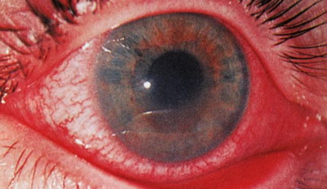 Глаз больного иридоциклитом