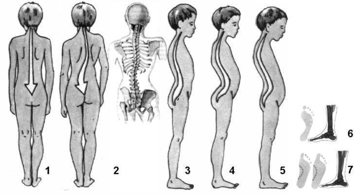 Техники массажа для сколиоза