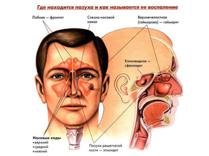 Схематическое изображение придаточных пазух носа
